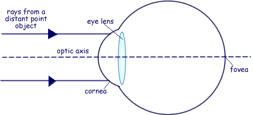 A Cyberphysics Page: Medical Physics questions on the eye