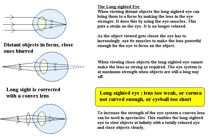 Cyberphysics The Human Eye Sight Defects And Their Correction